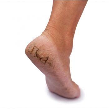 Home-Remedies-for-Cracked-Heels-and-dry-feet